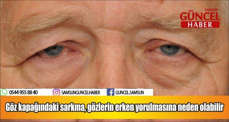 Göz kapağındaki sarkma, gözlerin erken yorulmasına neden olabilir