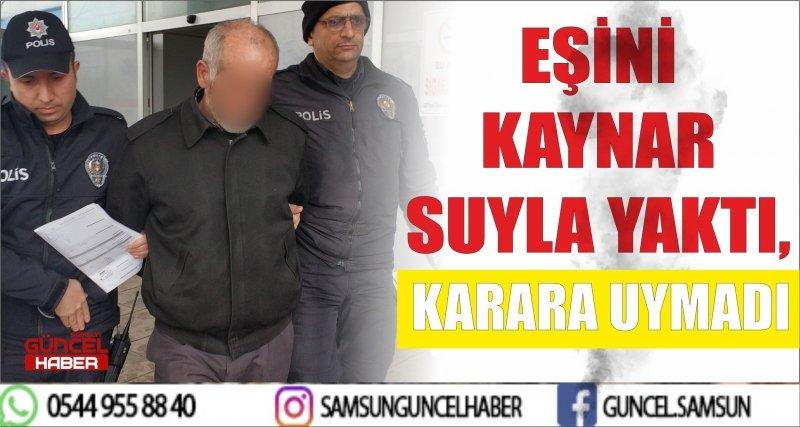 EŞİNİ KAYNAR SUYLA YAKTI, KARARA UYMADI