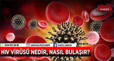 HIV VİRÜSÜ NEDİR, NASIL BULAŞIR?