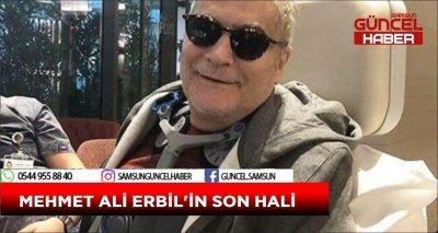 MEHMET ALİ ERBİL'İN SON HALİ