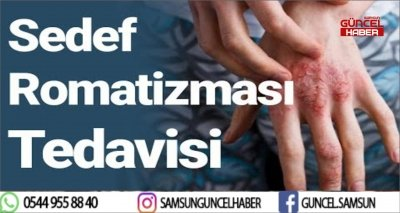 SEDEF ROMATİZMASINA DİKKAT